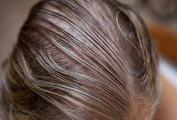 072038_1221_1 أسباب تساقط الشعر عند الرجال والنساء