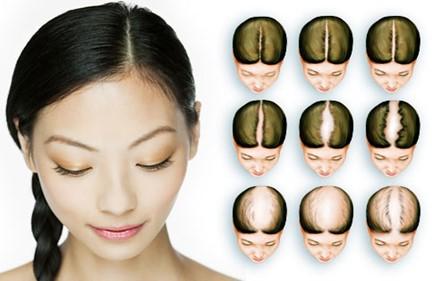 072038_1221_2 أسباب تساقط الشعر عند الرجال والنساء
