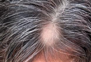 072038_1221_3 أسباب تساقط الشعر عند الرجال والنساء