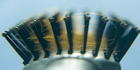 072038_1221_8 أسباب تساقط الشعر عند الرجال والنساء