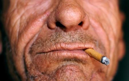 تجاعيد الفم المسببة بالسجائر
