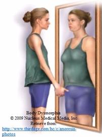 080138_0414_2 اضطراب تشوه الجسم Body Dysmorphic Disorder