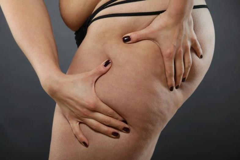 090438_0318_1 شفط الدهون: استعمالاته، مخاطره وفوائده