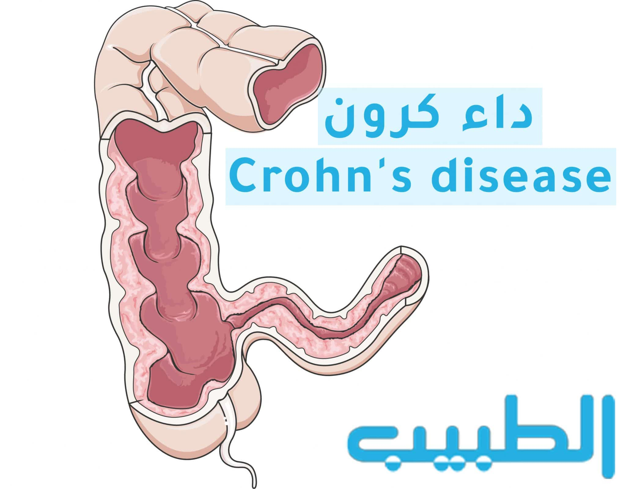 داء كرون Crohn's disease