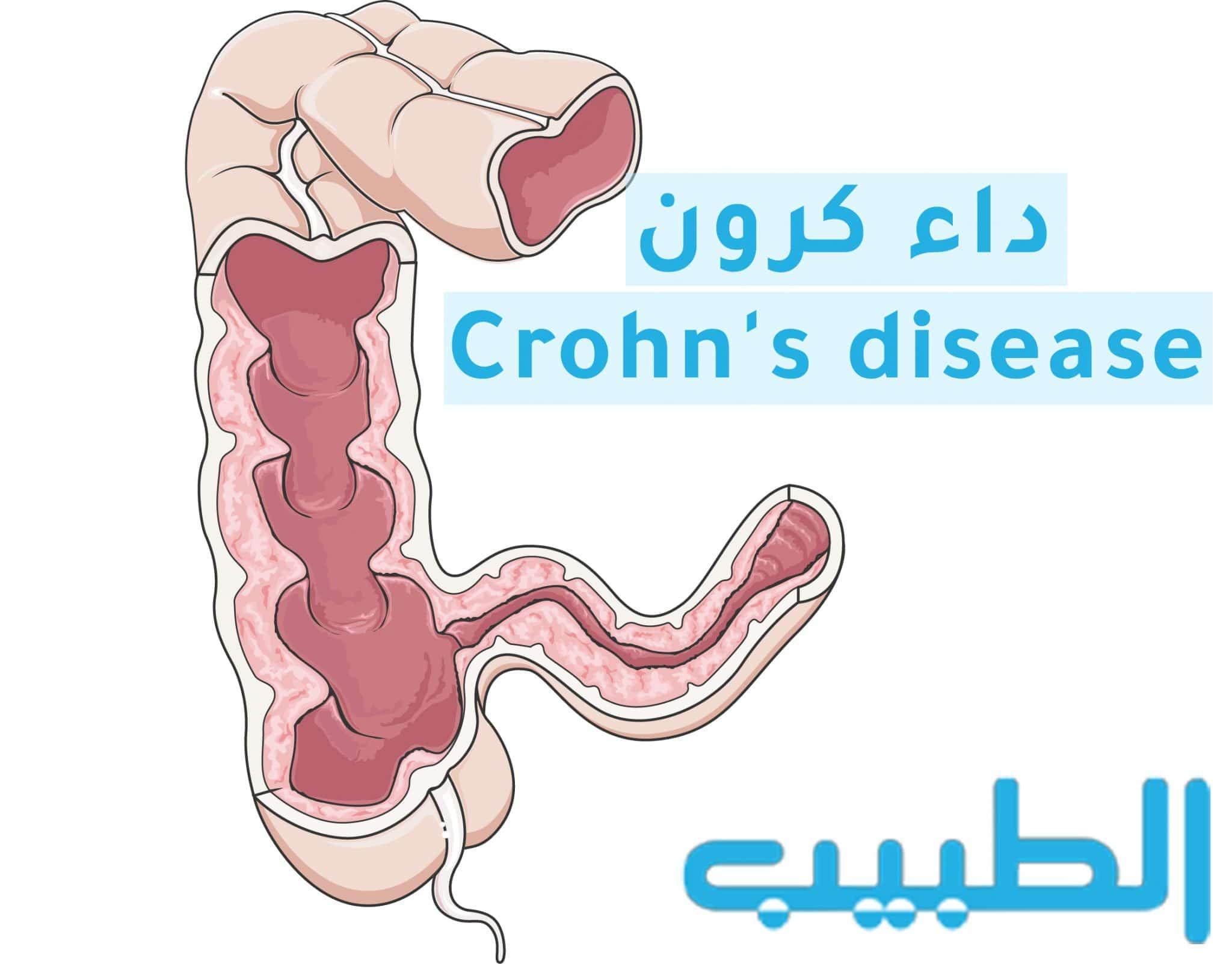 Colon Crohn