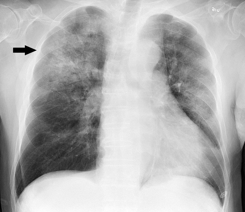 تبين الصورة التالية ذات رئة خلالية ( تحديداً بسبب الإصابة بفايروس الإنفلوزا ) لذا تسمى ب ذات الرئة الفايروسية
