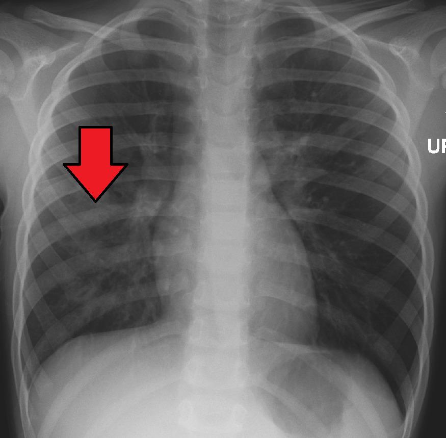 صورة صدر تظهر ذات رئة فصية