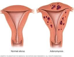 الأدينوميوز Adenomyosis