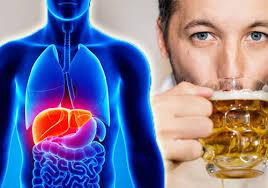 التهاب الكبد الكحولي