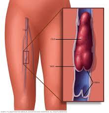 التهاب الوريد الخثري العميق