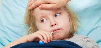 الحصبة Measles