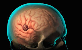 الخراجات الدماغية