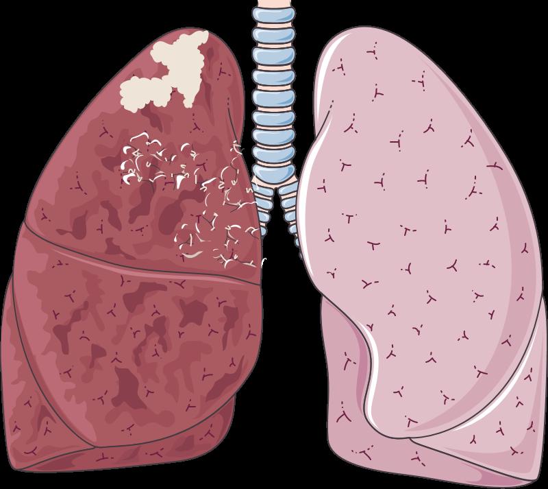 شكل ترسيمي يظهر ورم بانكوست في قمة الرئة اليمن على قاعدة رئة مصاب بالسرطان