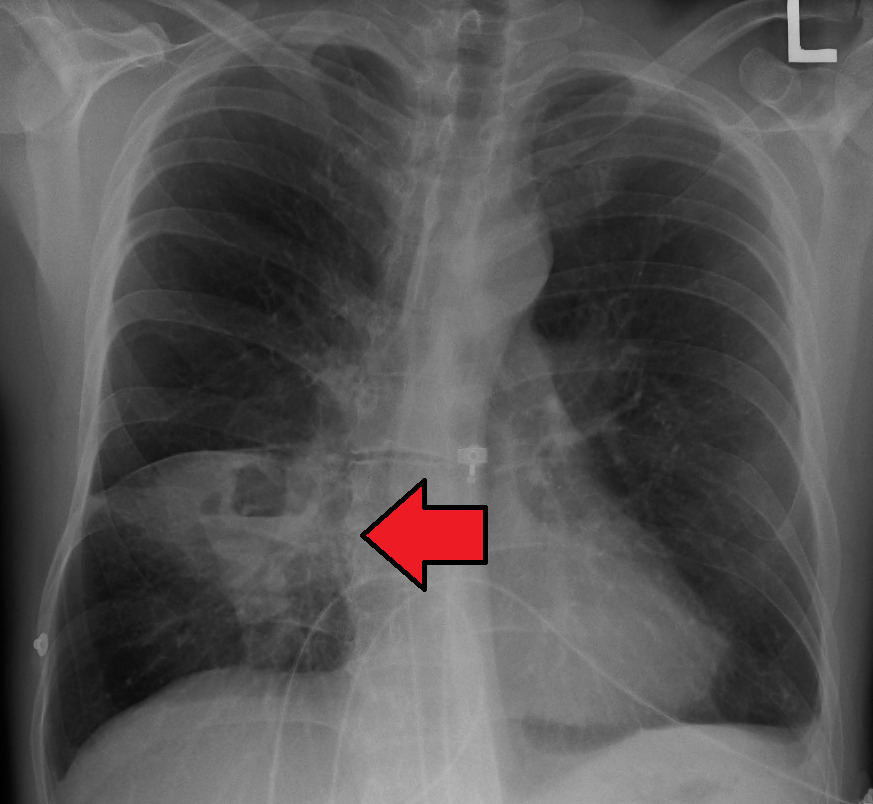 خراج الرئة : صورة الأشعة البسيطة