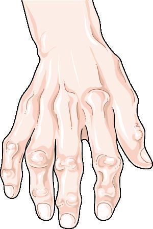 التشوه الحاصل في المفاصل في الفصال العظمي