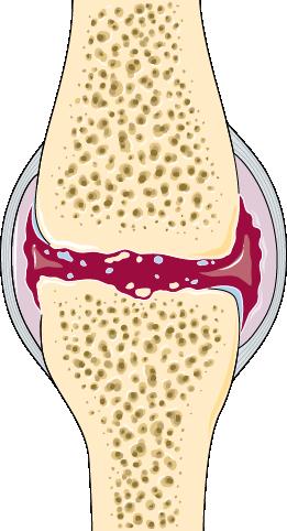 الفصال العظمي - تنكس في مفصل الركبة