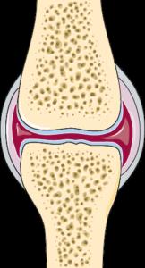 صورة ترسيمية تظهر الشكل الطبيعي لمفصل الركبة مع سطوح المفاصل والغضاريف