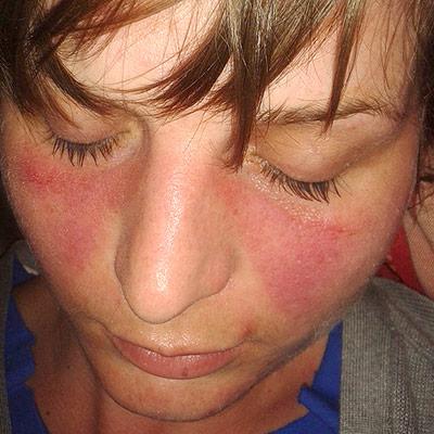 طفح الفراشة عند مريض مصاب ب مرض الذئبة الحمراء الجهازية