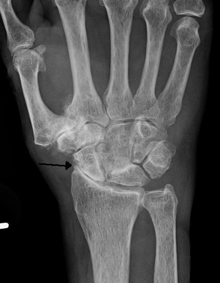 التشوه الحاصل في المفاصل في التهاب المفاصل التنكسي