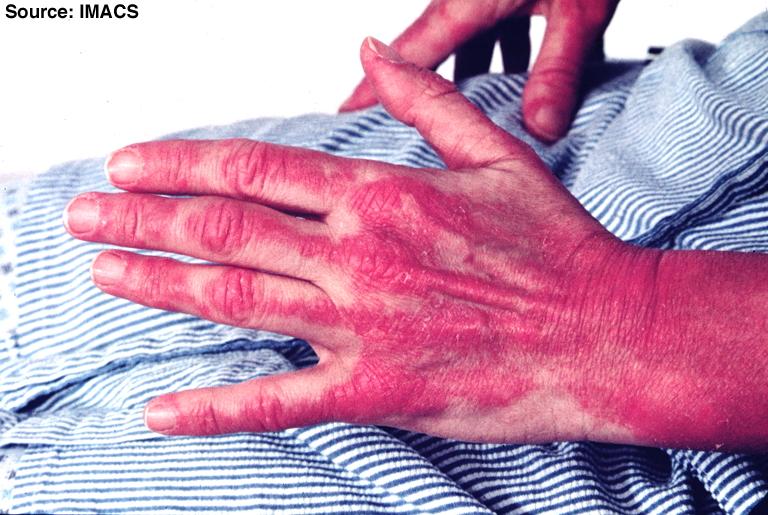التهاب العضلات المناعي أو التهاب العضلات الروماتزمي