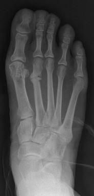 صورة أشعة بسيطة تظهر كسر الاجهاد (الكسر الاجهادي)