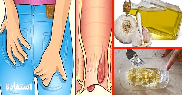 الثوم ل علاج البواسير